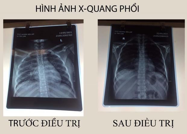 be-15-tuoi-suyt-chet-vi-ngo-doc-do-uong-thuoc-nam