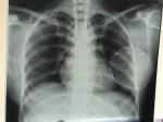 Nâng ngực bị vôi hóa, nữ Việt kiều đau đớn cầu cứu bác sĩ