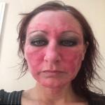 Làn da như bị tạt axit sau nhiều năm sử dụng kem trị bệnh vảy nến