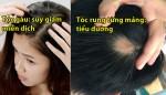 8 dấu hiệu cảnh báo sức khỏe đang có vấn đề thông qua mái tóc