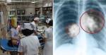Đi học mầm non em bé bỗng mắc bệnh lao, bác sỹ chỉ ra con đường lây nhiễm quen thuộc
