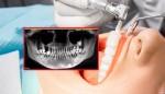 Cô gái phải nhổ cả hàm trên vì quên một việc khi vệ sinh răng