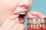 Dùng chỉ nha khoa vệ sinh răng miệng sai cách có thể gây nhiễm trùng nướu nghiêm trọng
