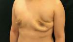 Hoảng hồn ngực biến dạng, nhăn nhúm sau bơm mỡ nâng cấp vòng 1