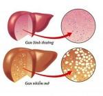 Những dấu hiệu điển hình cảnh báo bạn bị gan nhiễm mỡ, cần điều chỉnh ngay chế độ ăn