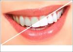5 cách tẩy ố vàng bám trên răng hiệu quả và nhanh nhất