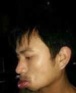 ca-si-huong-tram-noi-man-ngua-chung-di-ung-gay-nguy-hiem-lon-muc-nao-neu-chu-quan
