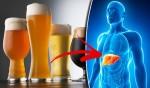 Dấu hiệu cảnh báo gan bị tổn thương không bao giờ được xem nhẹ do sử dụng rượu bia
