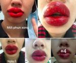 Cô gái ở Hà Nội bị sưng tều môi, nổi mụn nước sau khi làm ở spa gần nhà