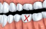 Người đàn ông 31 tuổi đi khám vì răng lung lay, bác sĩ quyết định nhổ tất cả răng vì sai lầm từ 2 năm trước của anh