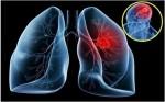 Đừng nghe quảng cáo sàng lọc sớm tất cả các bệnh u.ng th.ư, chỉ có 5 loại u.ng th.ư sau có khuyến cáo sàng lọc