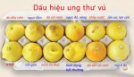 6-dau-hieu-canh-bao-som-ung-thu-vu-ma-ban-khong-nen-bo-qua