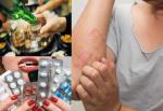 Cấm kỵ tuyệt đối dùng thuốc chống dị ứng Diphenhydramin cùng rượu