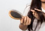 Rụng tóc khi nào cần đi thăm khám bác sĩ, đây là 6 việc không nên làm để hạn chế tóc gãy rụng