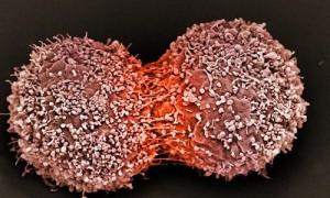 Tốc độ tăng ung thư ở Việt Nam nhanh nhất thế giới