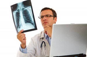 Cảnh giác với 5 dấu hiệu sớm của ung thư phổi