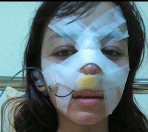 Cô gái chịu đau đớn 'chết đi sống lại' khi nâng mũi để sửa tướng