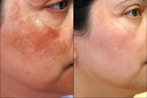 Nghệ ngâm giấm: Hỗn hợp trị nám da tại nhà hiệu quả không cần mỹ phẩm?