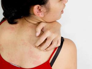 Đừng coi thường ngứa da, đó có thể là biểu hiện bệnh lý của ung thư máu