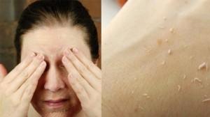 10 năm sau da vẫn mềm mịn, không nếp nhăn nếu áp dụng ngay cách chăm sóc này