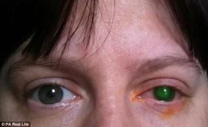 Suýt mù vĩnh viễn một bên mắt chỉ vì đi bơi không bỏ kính áp tròng