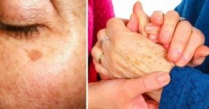 Bật mí tuyệt chiêu loại bỏ các đốm tàn nhang lấm tấm trên da
