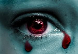 Giọt lệ máu - dấu hiệu bệnh cực hiếm và nguy hiểm