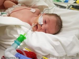 Lại là 'nụ hôn thần chết' khiến bé 8 tuần tuổi đối mặt tử thần, hôn mê, ngưng thở