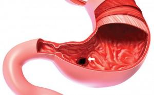 Bệnh loét dạ dày ngày một tăng, có khi cả gia đình cùng mắc: Chuyên gia chỉ 5 nguyên nhân