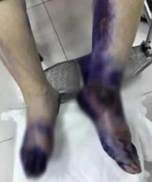 Châm tím đen sau khi bị bỏng, lý giải của bác sĩ khiến nhiều người giật mình