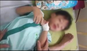 Lạ lùng bé trai 5 tuổi chết thương tâm sau 1 tháng bị chó cắn nhưng kết quả
