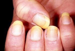 Khi quầng móng tay xuất hiện dấu hiệu này chú ý kẻo mang bệnh mà không biết