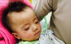 Thời tiết trở lạnh, bệnh sởi bùng phát nguy cơ ảnh hưởng tới trẻ nhỏ và bà bầu