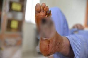 """Bàn chân loét nham nhở vì mắc tiểu đường lại còn dùng bộ đá chườm nóng """"thần thánh"""""""