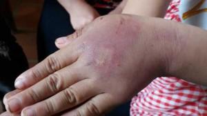 Bé gái 8 tuổi bị bố nghiện ma túy nhiều lần trói vào cột đánh dã man