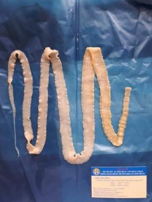 57 trẻ ở Bắc Ninh dương tính với sán lợn: Hành trình ấu trùng sán lợn phá hoại cơ thể diễn ra như thế nào?