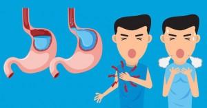Người bị trào ngược dạ dày nên chú ý tới những điều này để không làm tình trạng bệnh thêm tồi tệ