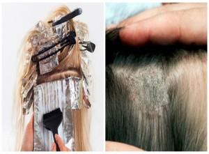 Sưng mặt, bỏng da đầu vì thuốc nhuộm tóc, tránh ham rẻ rồi 'rước họa'