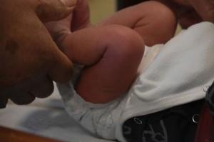 Từ vụ tử vong sau khi cắt bao quy đầu, chuyên gia chỉ rõ những dấu hiệu cần can thiệp sớm