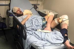 Ông bố trẻ 37 tuổi cầu xin bác sĩ cắt cụt chân mình vì lý do khủng khiếp