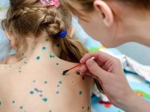 Thủy đậu vào mùa: Biến chứng của bệnh thủy đậu có gây vô sinh không?