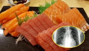 Ăn phải sushi bẩn, người đàn ông bị sán