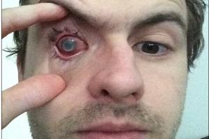 Chàng trai bị mù vì đeo kính áp tròng tắm