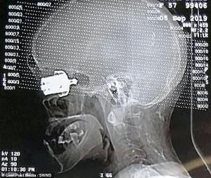 Sử dụng nồi áp suất trên bếp ga, người phụ nữ bị van nồi bắn mù mắt