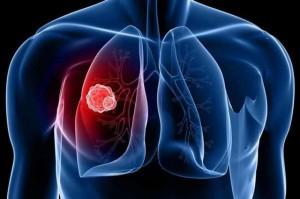 5 giải pháp đơn giản nhất để ngăn ngừa ung thư phổi: Mỗi người đều nên áp dụng sớm