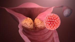 Ung thư âm thầm phát triển