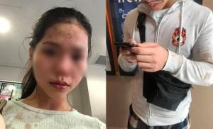 Cô gái gốc Việt và anh trai bị hất đồ uống, hành hung ở Úc vì đeo khẩu trang