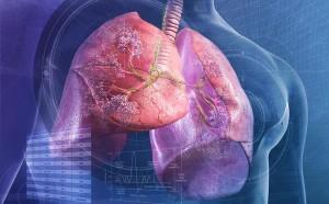 """Thấy cơ thể có 2 chỗ lồi và 3 chỗ đen sạm, cẩn thận phổi đang """"thủng lỗ chỗ"""" từng ngày"""