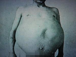 Chuyện kỳ lạ về người đàn ông bị táo bón bẩm sinh, chết khi cố đi đại tiện và ruột già được trưng bày trong bảo tàng Mỹ gây