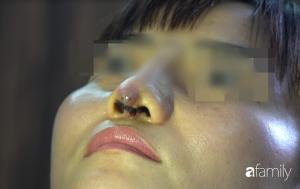 Người phụ nữ bị đứt lìa trụ mũi, chảy dịch và máu sau 12 ngày đi nâng mũi